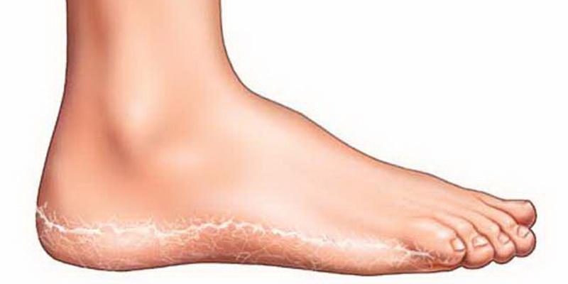 Грибок стопы, симптом и способы лечения